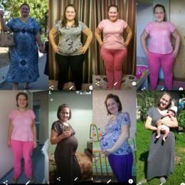 Ирина К. — До и после операции